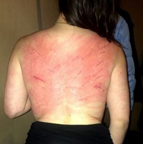 LASH — An unnamed woman posted this photo of her back after being whipped by the Judiciary.