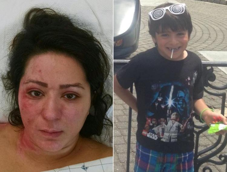 A FAMILY NO MORE — Narges Shafeirad (left) was photographed by the police in the hospital where she was taken after she burned herself while trying to incinerate the body of her five-year-old son, Daniel Dana (right), whom she had earlier killed by poisoning.